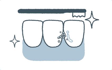 超微粒子で歯の汚れを落とす