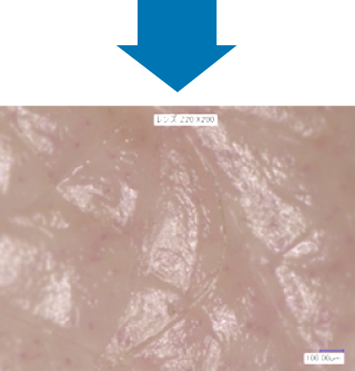 マイクロスコープで肌を拡大した写真