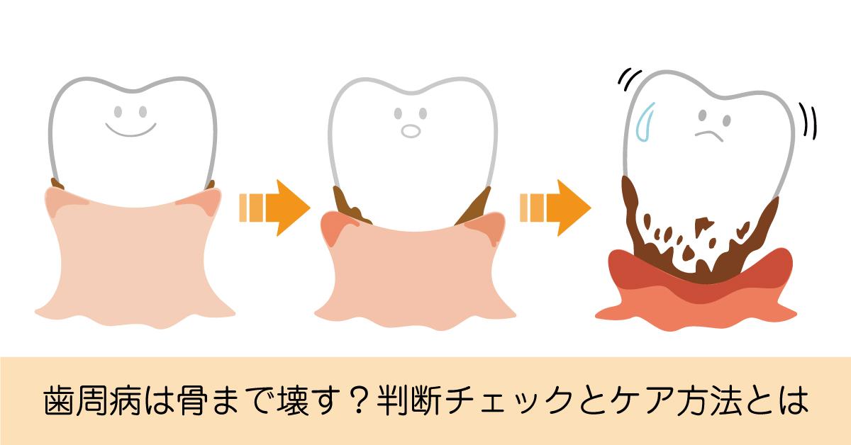 歯周病は歯が抜けるだけではなく骨まで壊す?判断チェックとケア方法とは
