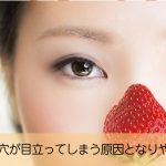 いちご鼻で毛穴が開き目立ってしまう原因となりやすい人とは?