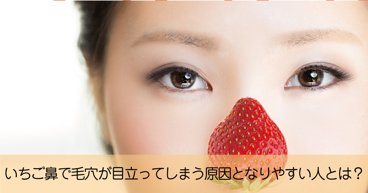 毛穴が開いて黒ずみが目立つ「いちご鼻」になりやすい人は?ケア方法は?